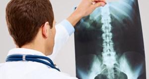 Ortopedije