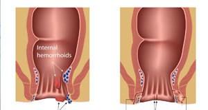 Operacija Hemoroida
