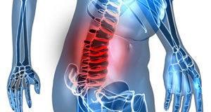 Hirurgija kičmenog stuba