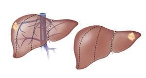 Hirurgija jetre