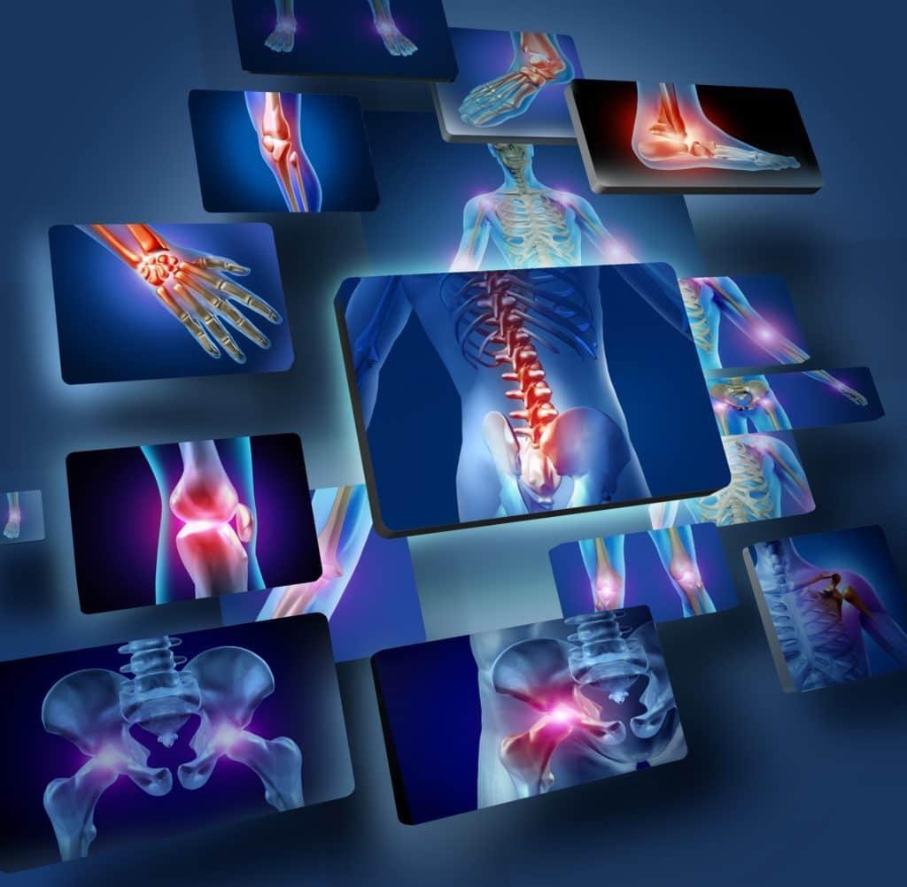 ortopedija-povrede-matične-ćelije