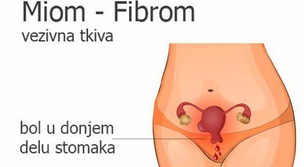 Miom materice Fibrom