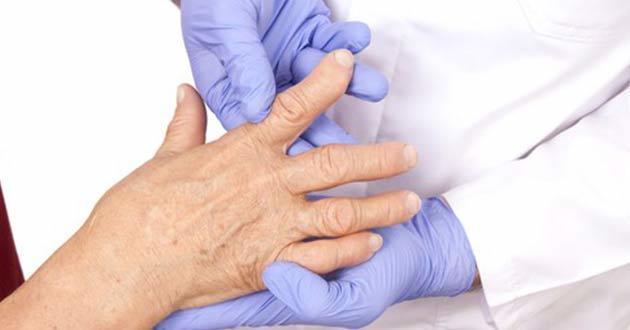 Reumatoidni artritis seropozitivni