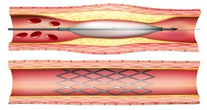Interventna kardiologija