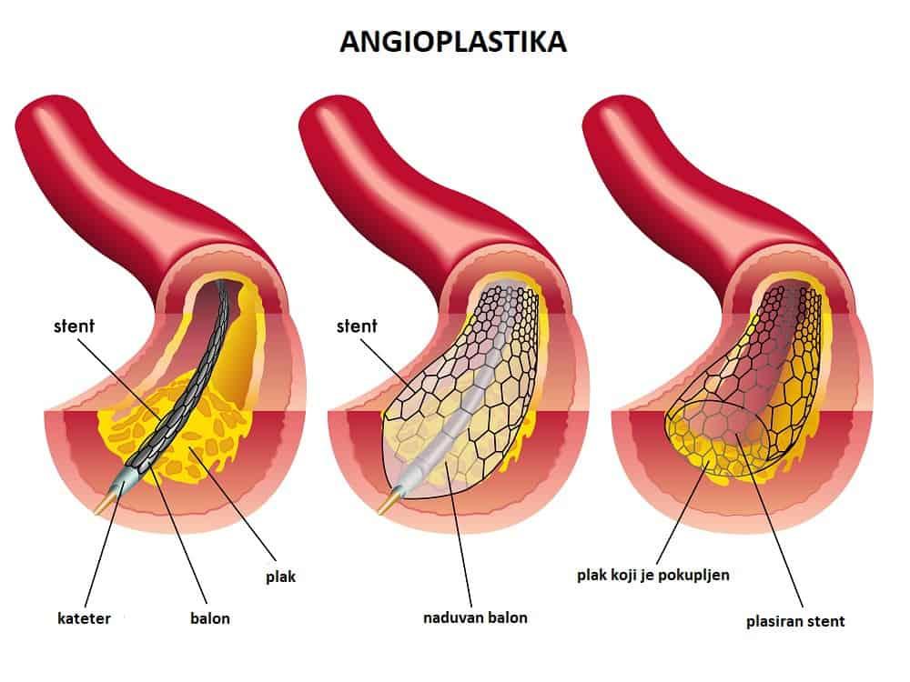 angioplastika-plasiranje-stenta