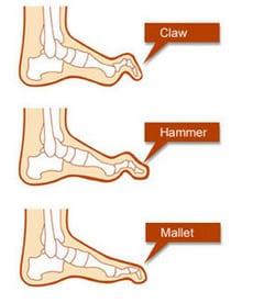 claw-hammer-prsti