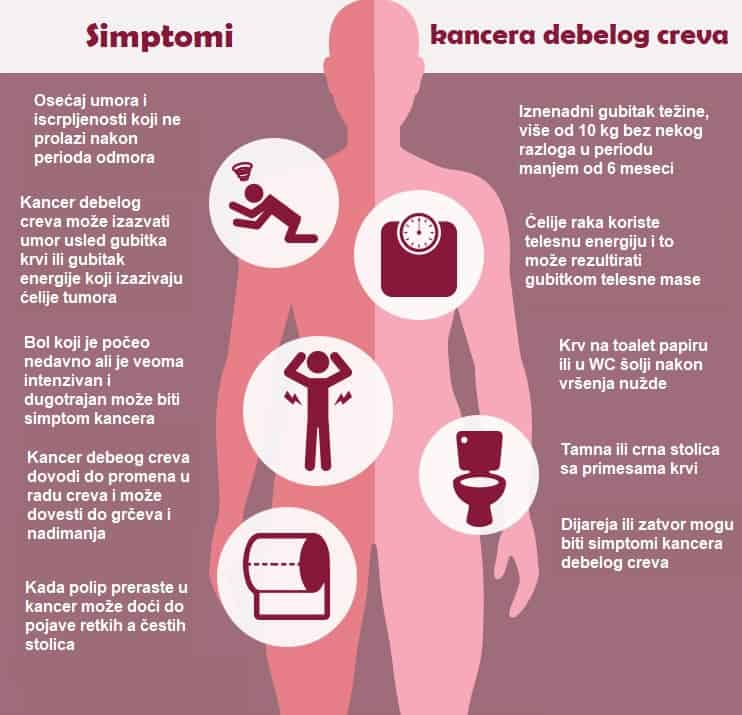 Simptomi raka debelog creva