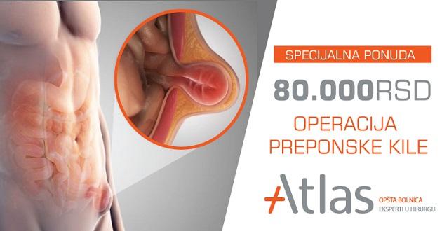 operacija-preponske-kile -atlas bolnica