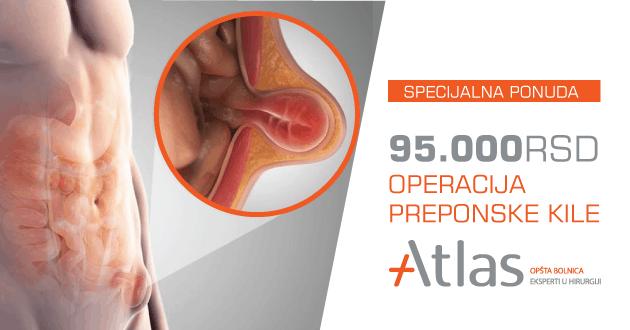 operacija-preponske-kile 2020