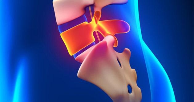 Spinalna hirurgija - Atlas opšta bolnica