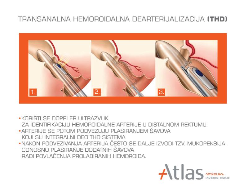 THD metoda - operacija hemoroida