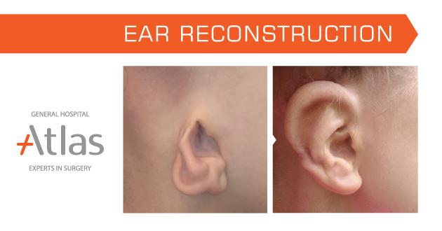 ترميم الأذن
