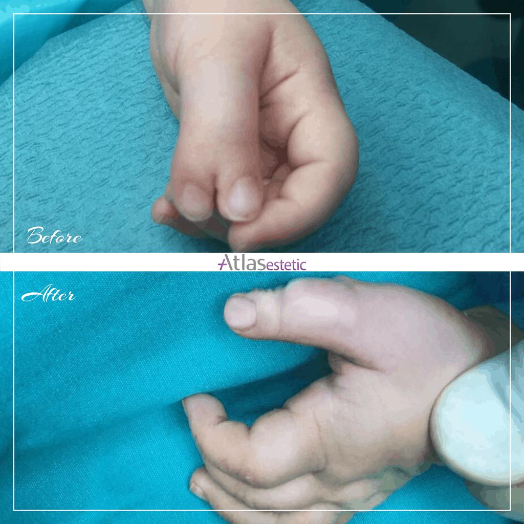 Pre i posle polidaktilija