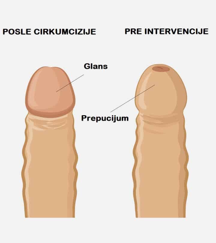 Cirkumcizija pre i posle
