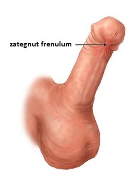 zategnut frenulum