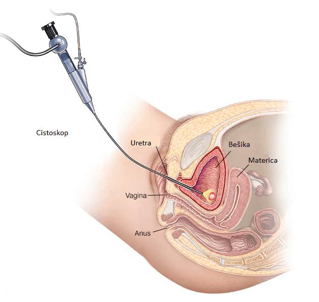Ženska cistoskopija