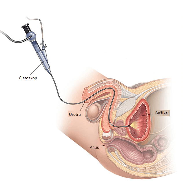 Muška cistoskopija