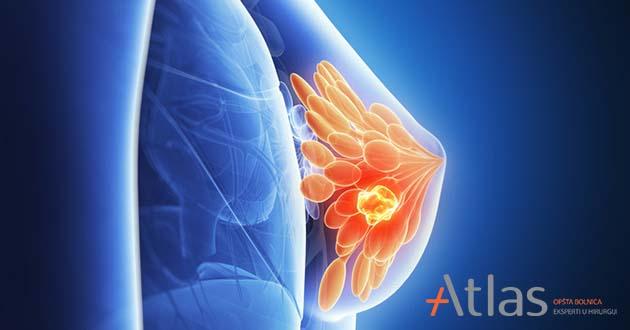 Tumor dojke