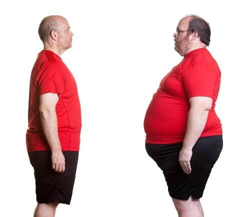 prekomerno gojazni
