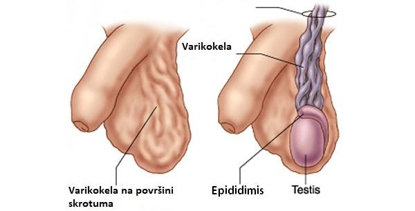 prețurile operațiunea volzhsky varicoză)