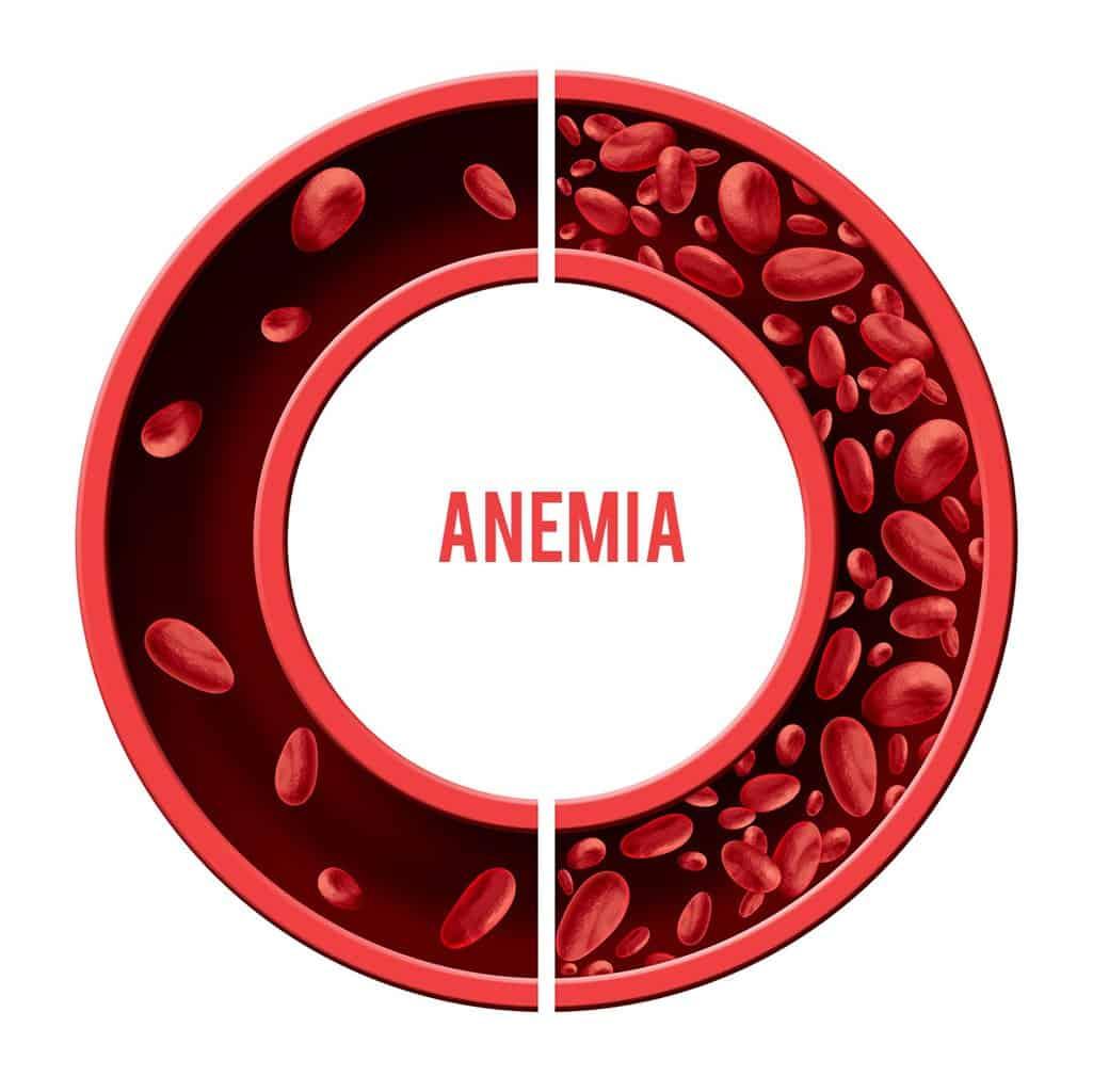 Anemia lečenje