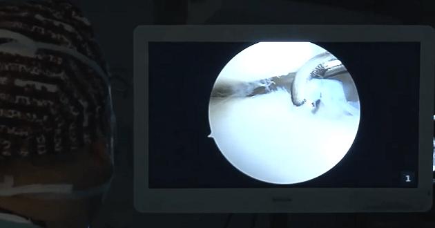 Artroskopija skočnog zgloba