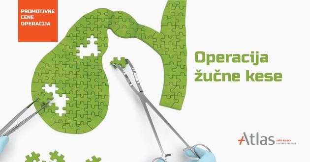 operacija žučne kese Atlas bolnica