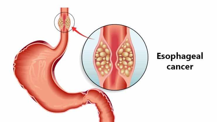 esophageal-cancer Atlas hospital