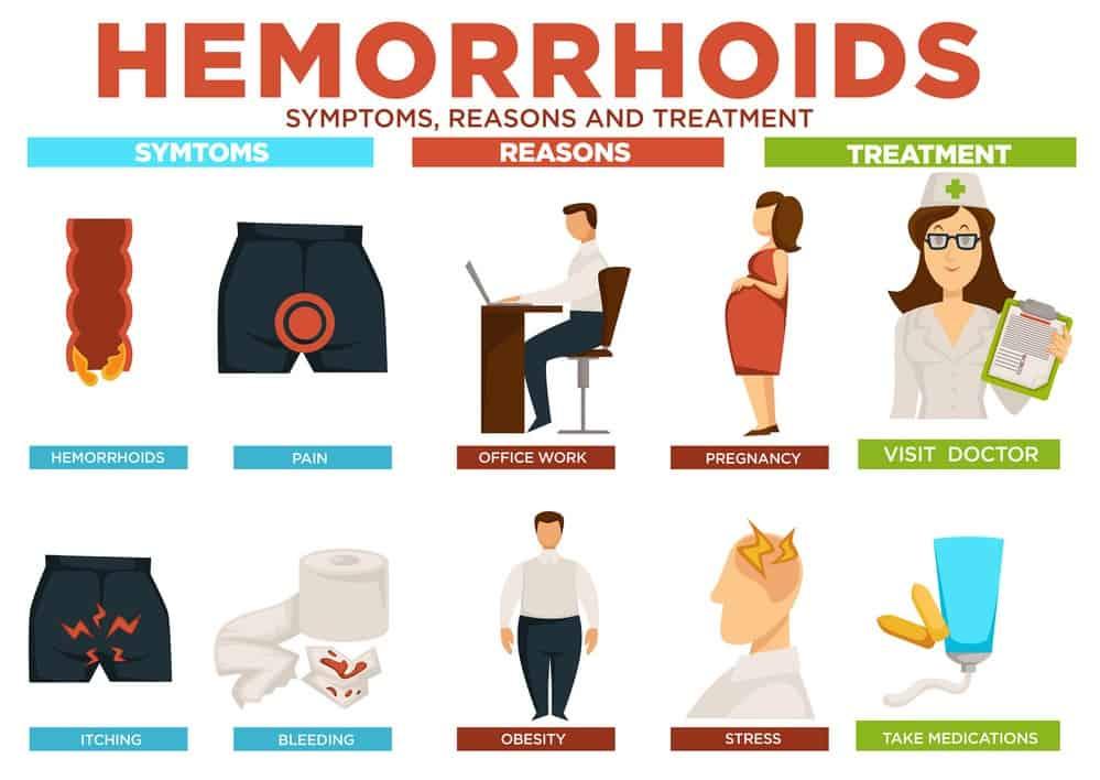 Hemorrhoids symptoms reasons and treatment