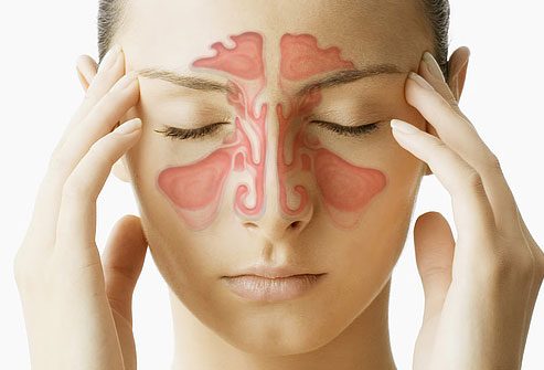 Upala sinusa - sinusitis