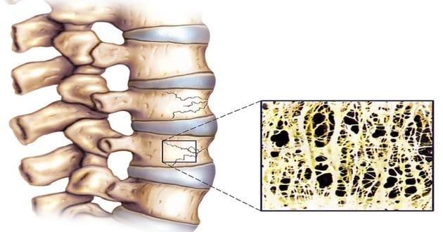 Osteoporoza pršljena