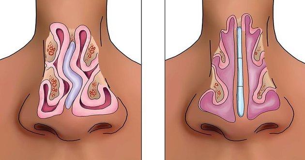 operacija polipa