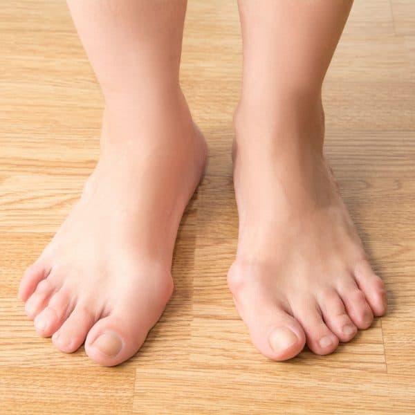 Čukljevi na stopalima