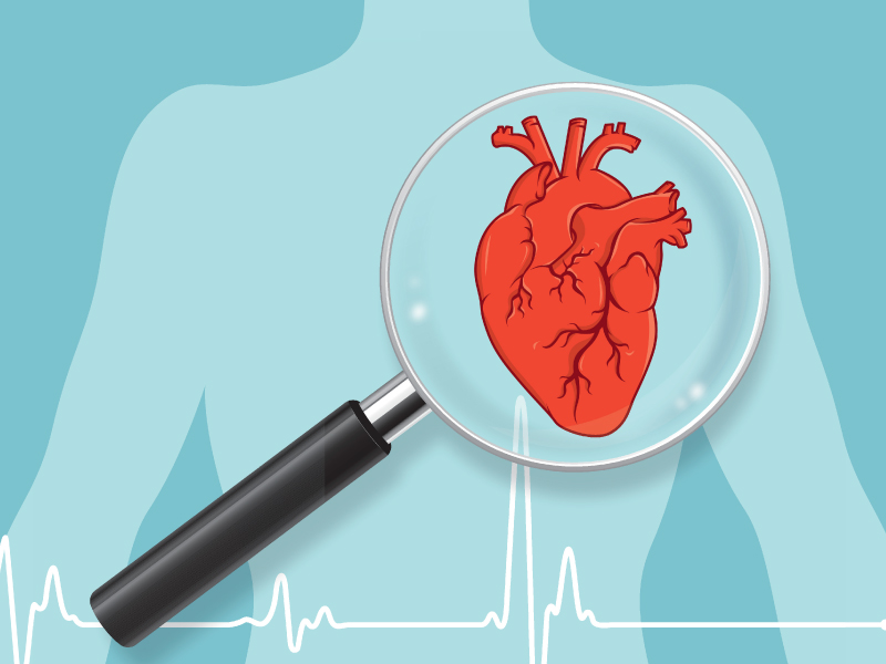 Kardiovaskularne bolesti