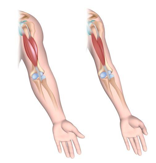 Mišićna distrofija bicepsa