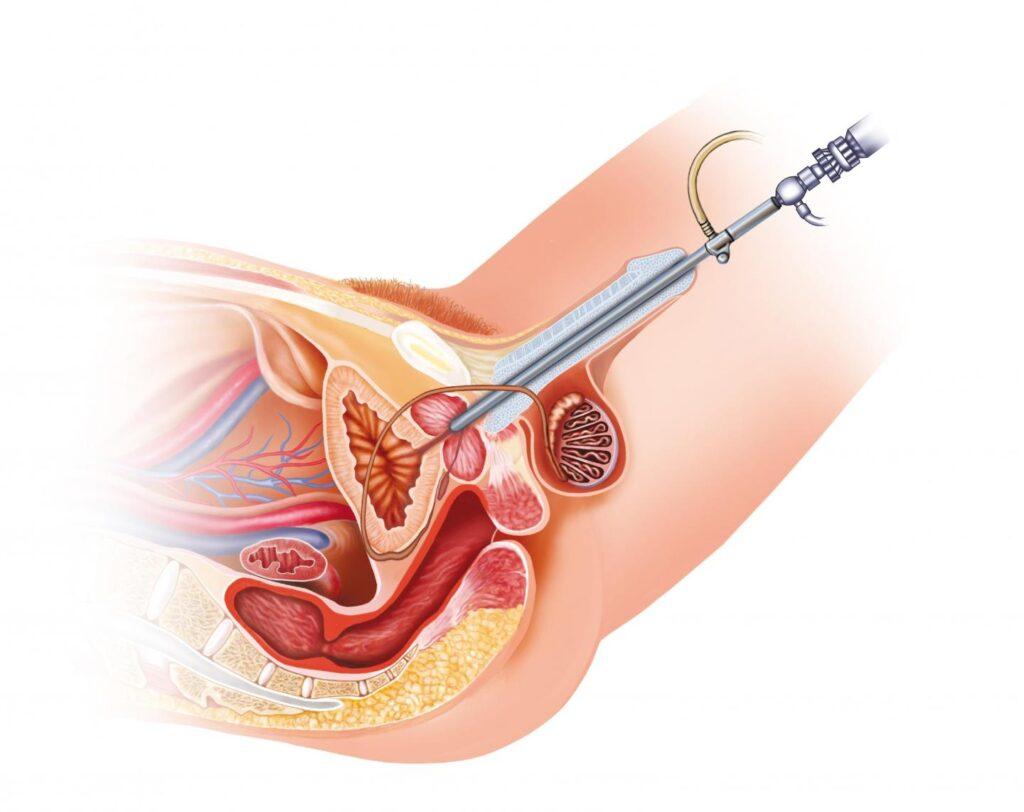 Tumor mokraćne bešike operacija