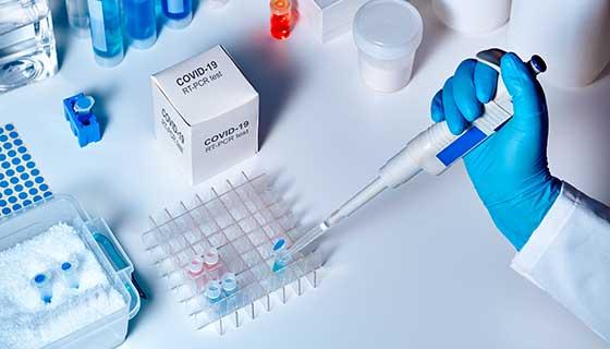Testiranje na korona virus